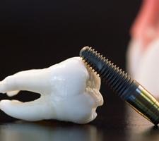 دندانپزشکی-در-هند